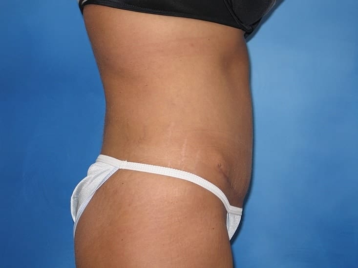 Tummy Tuck Munster Patient 6.1