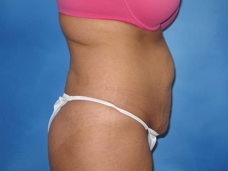 Tummy Tuck Munster Patient 6