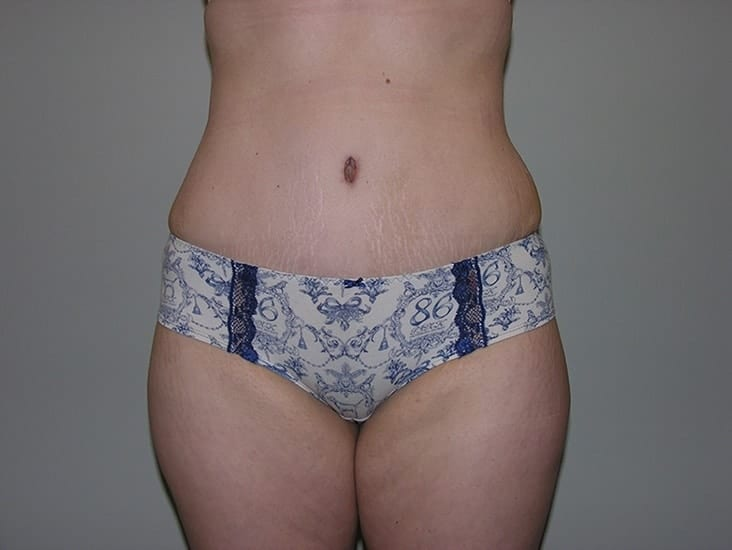 Tummy Tuck Munster Patient 7.1