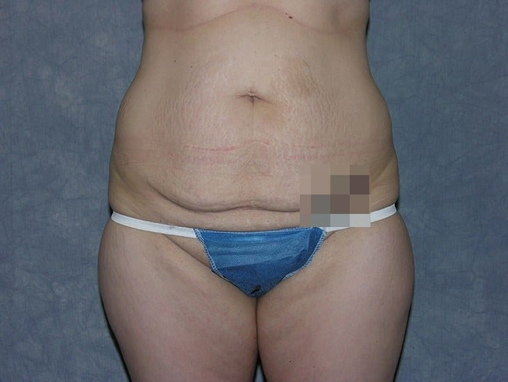Tummy Tuck Munster Patient 7