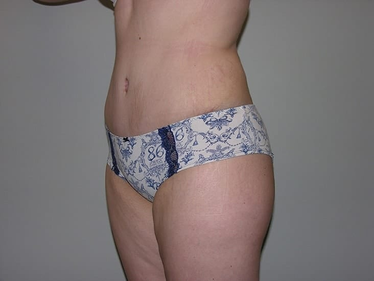 Tummy Tuck Munster Patient 8.1