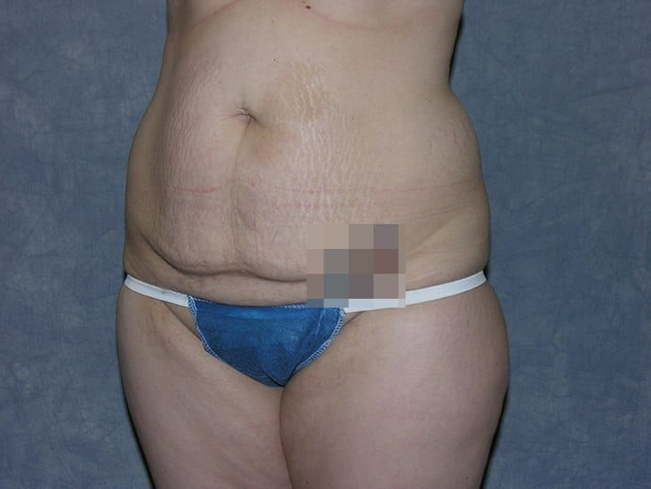 Tummy Tuck Munster Patient 8