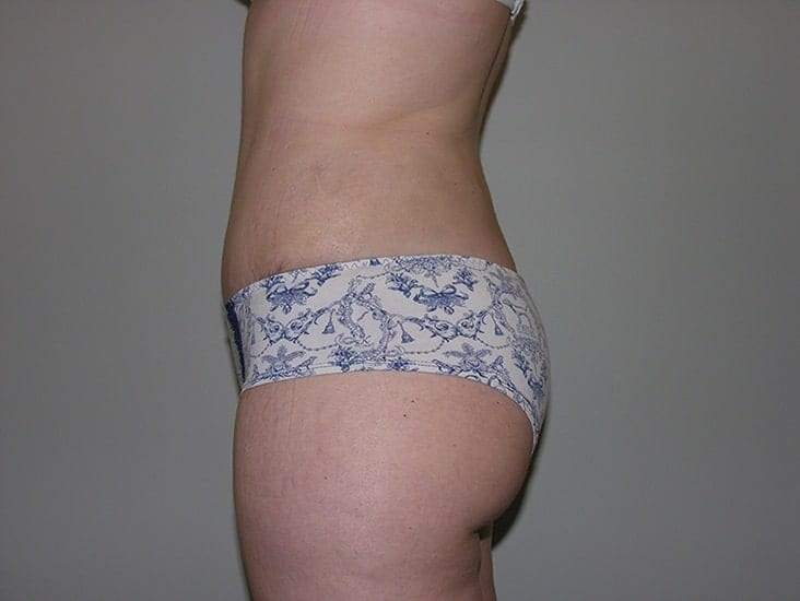 Tummy Tuck Munster Patient 9.1
