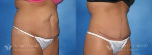 Tummy tuck Hobart Patient 1-2
