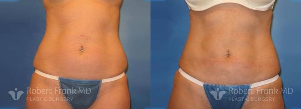 Tummy tuck Lake County Patient 10-1