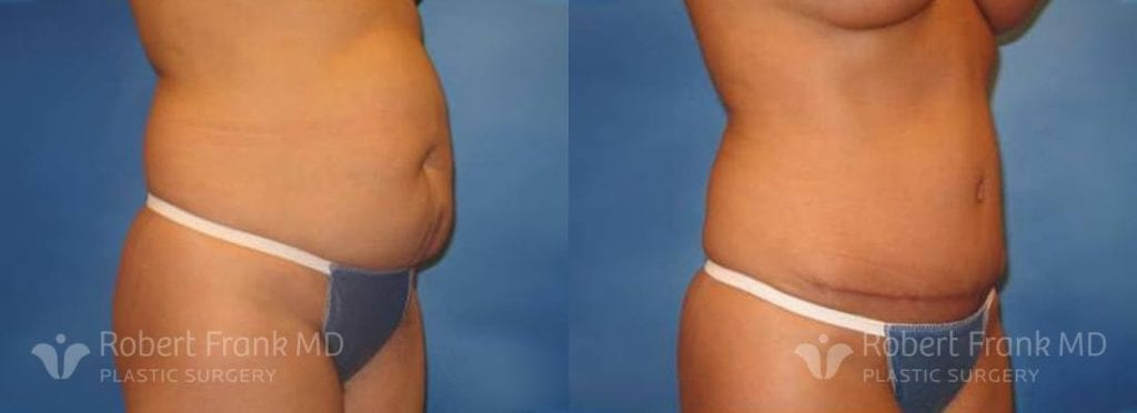 Tummy tuck Lake County Patient 12-1