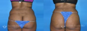 Tummy tuck Lake County Patient 8-2