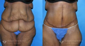 Tummy tuck Lake County Patient 9-1