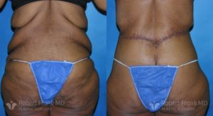 Tummy tuck Lake County Patient 9-2
