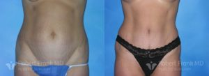 Tummy tuck Hobart Patient 4-1