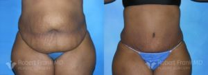 Tummy tuck Hobart Patient 6-1