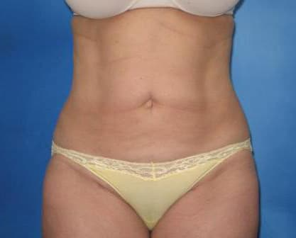 Liposuction Munster Patient 1.1