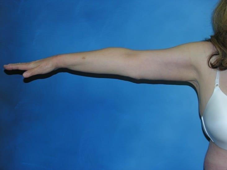 Brachioplasty Hobart Patient 1.1