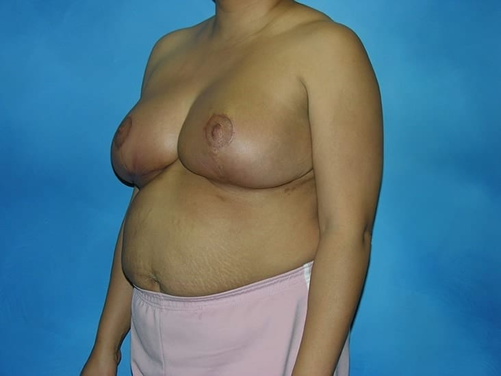 Breast Reduction Hobart Patient 2