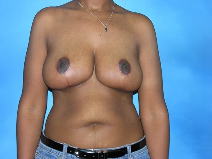 Breast Reduction Munster Patient 3.1