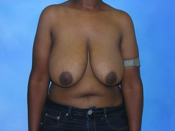 Breast Reduction Munster Patient 3
