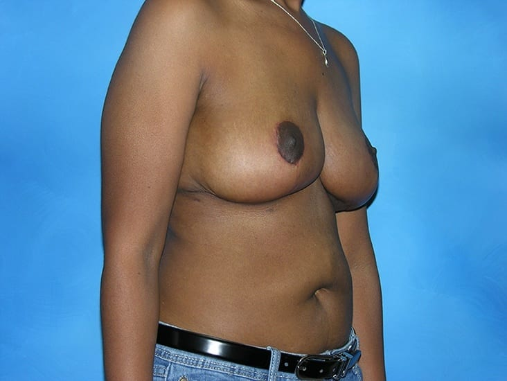 Breast Reduction Munster Patient 4.1