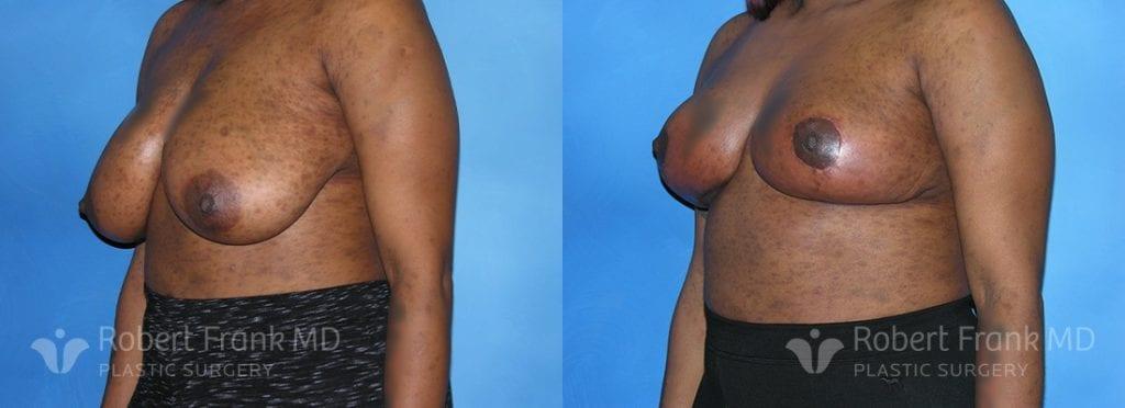 Breast reduction Munster Patient 1-1