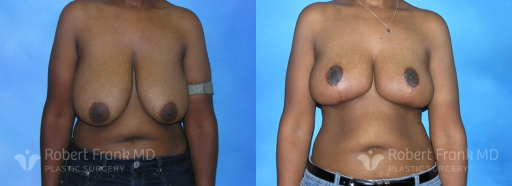 Breast reduction Munster Patient 2-1