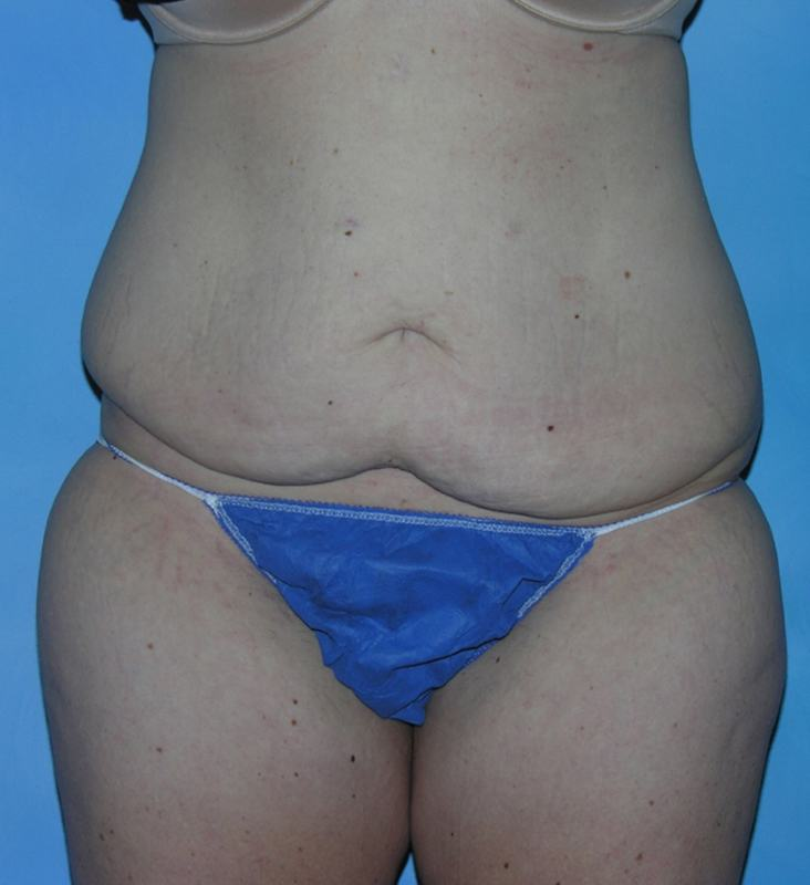 Post Bariatric Reconstruction Hobart Patient 1