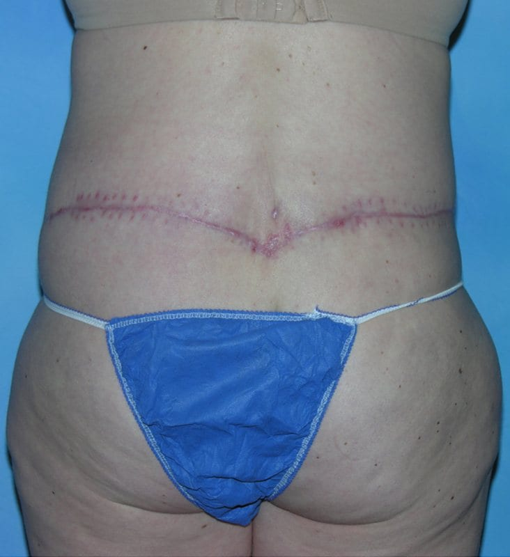 Post Bariatric Reconstruction Hobart Patient 2.1