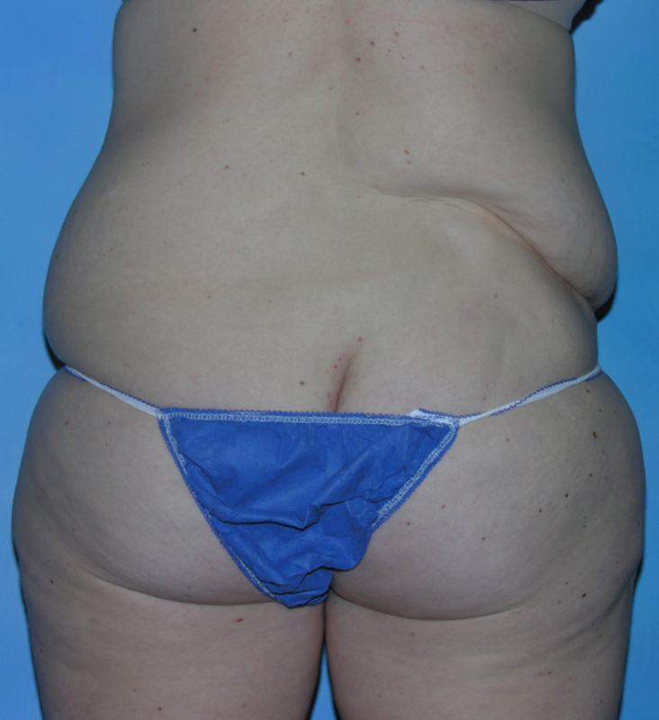 Post Bariatric Reconstruction Hobart Patient 2