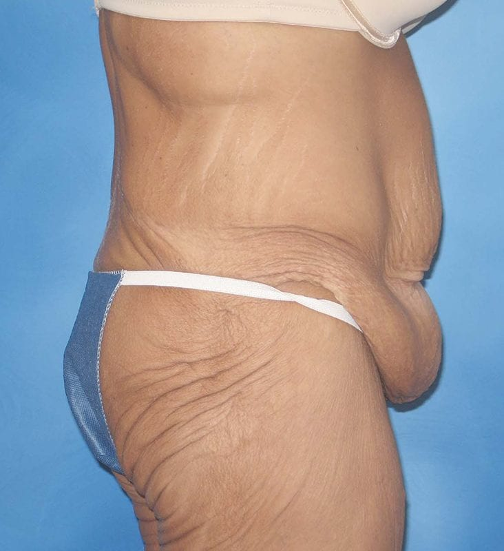 Post Bariatric Reconstruction Munster Patient 1